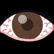 上強膜炎で目が充血の画像